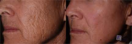 anti biotics for acne picture 9