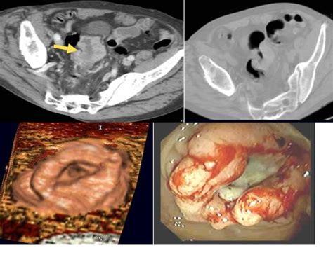 cat scan and colon cancer picture 11