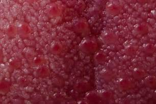 small red area inside vagina sore when i picture 1