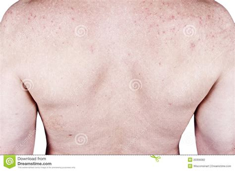 dermatologist shots that cause problems in men picture 12