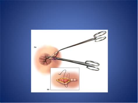 removal of external hemorrhoids picture 7