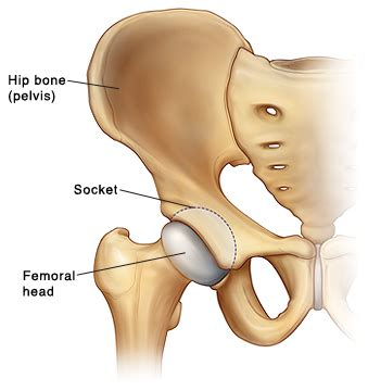 hip & joint picture 2