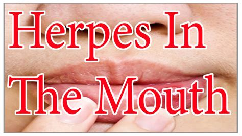 picture of herpes in the mouth picture 11