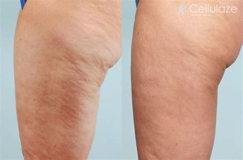 cellulite and laser picture 1