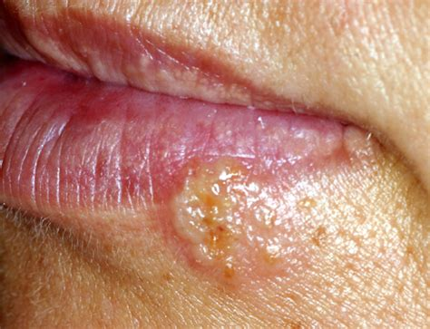 what causes blisters herpes picture 19