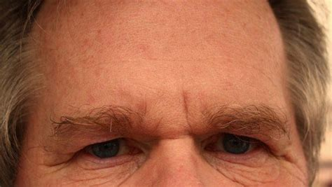 dry skin on 's forehead picture 11