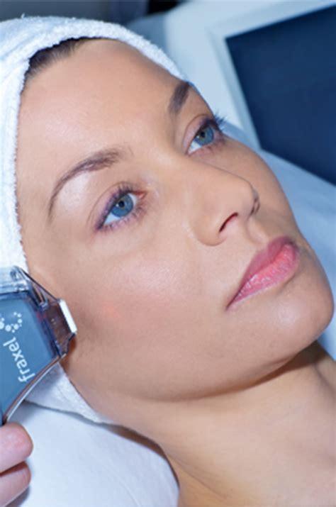 skin care for vitaligo picture 2