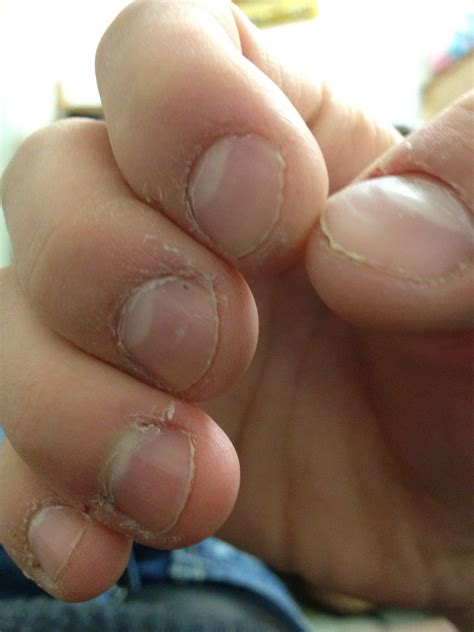 warts on cuticles picture 19