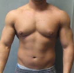 sides of pecs flabby cellulite picture 6