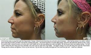 total body enhancement help acne? picture 15