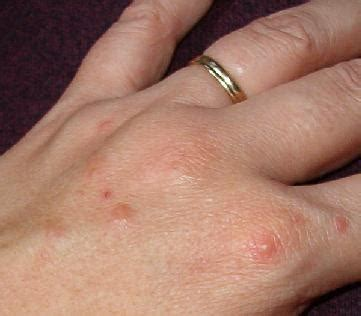 red spots on skin of thumb picture 22