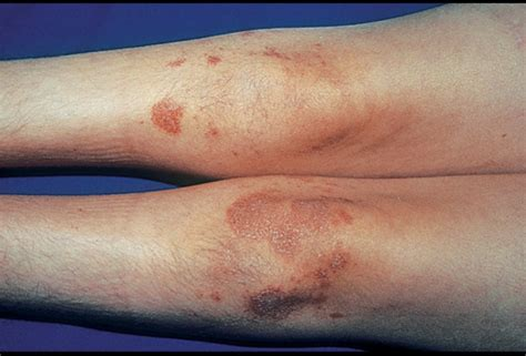 skin rashes warts picture 10