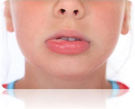 swollen lower lip picture 2