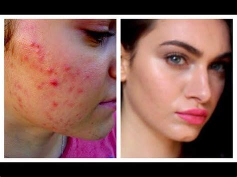 susan weed cystic acne picture 3