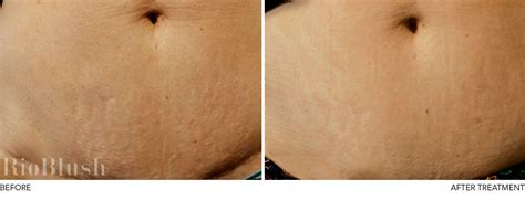 can white stretch marks appear without being another picture 3