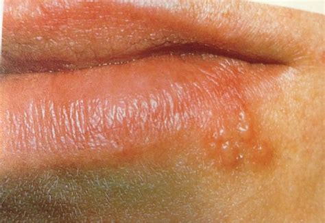 lip scarring +herpes picture 1