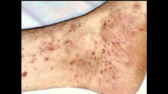 dry skin on feet and hiv picture 17