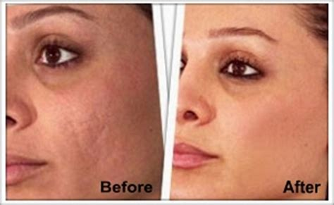 does revitol cellulite help acne red marks picture 14