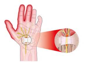 carpal tunnel pain relief picture 14