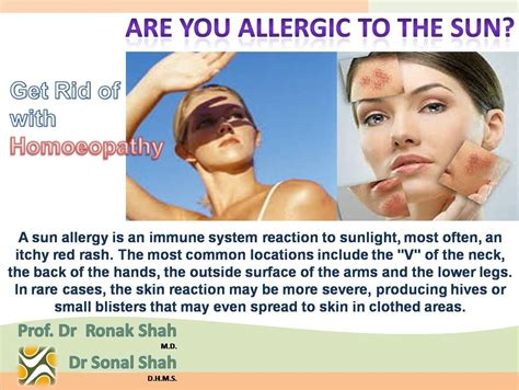 alergic skin reactions to the sun picture 2
