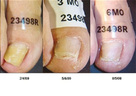 pinpointe footlaser in indiana picture 5