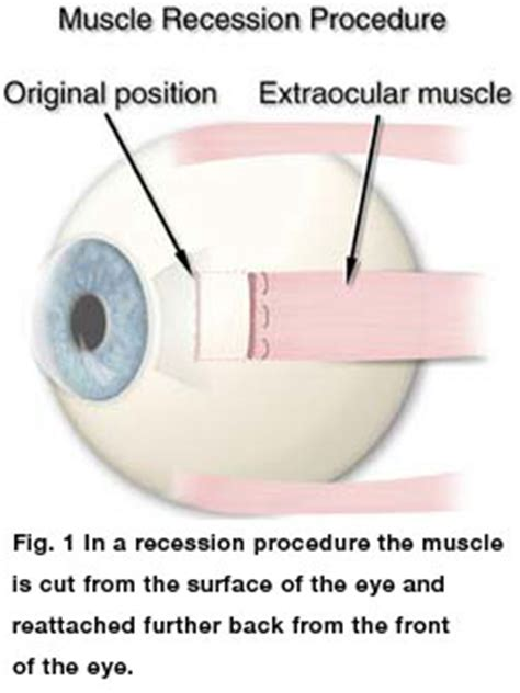 double vision eye muscle surgery picture 1