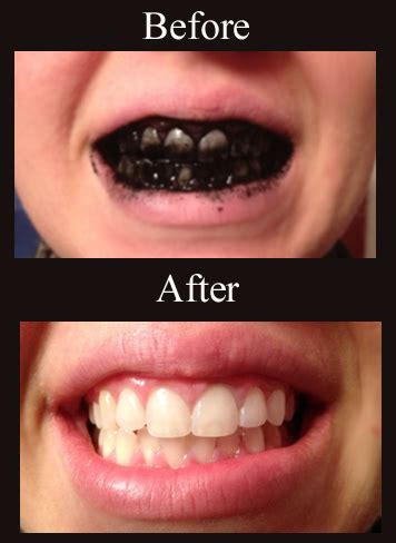 whiten teeth easily picture 3
