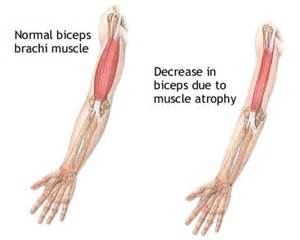 muscle dieases picture 5