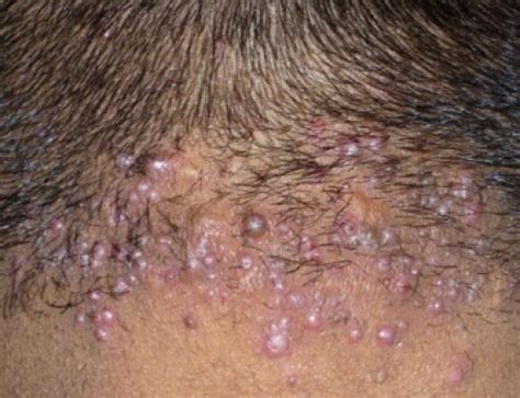 acne on the back of my head picture 1
