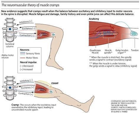 causes of muscle cramping picture 13