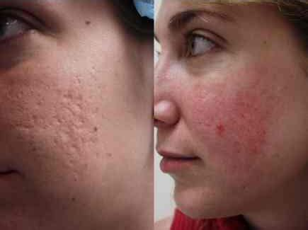 acne scar removal home picture 14