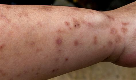 bed bug sores on skin picture 3