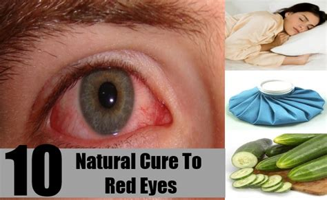 chinese herbal remedy for red eyes picture 6