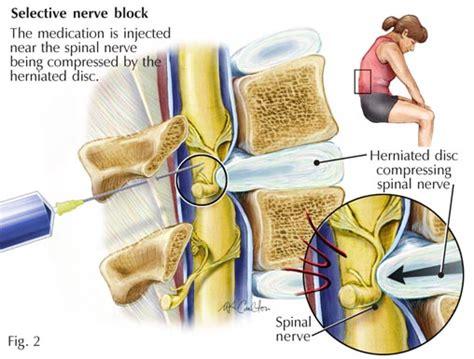 epidural pain relief picture 10