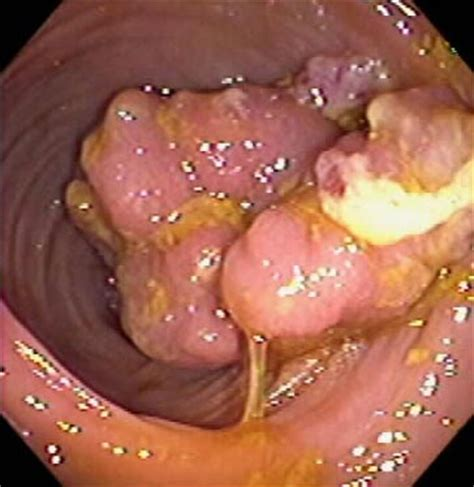 polups in colon picture 1