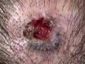 a yeast infection looks like picture 13