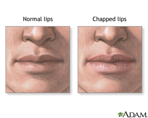 what to do for dry lips picture 6