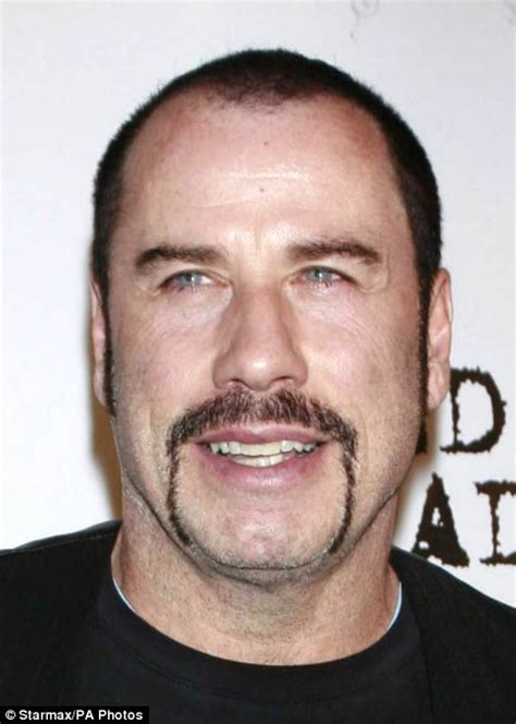 Nicolas cage hair loss picture 6