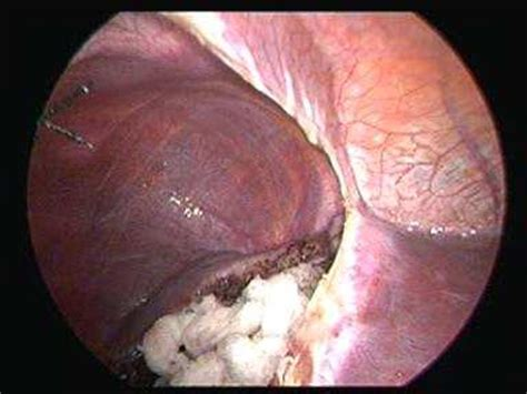 pictures of liver cyst picture 14