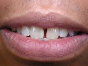 gap in the front teeth picture 1