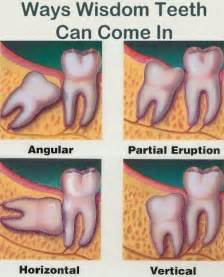 tooth pain relief picture 10
