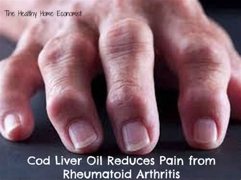 arthritis and cod liver oil picture 19