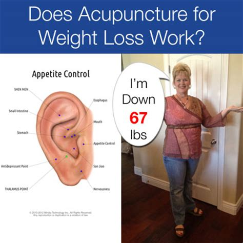Acupuncture weight loss picture 1