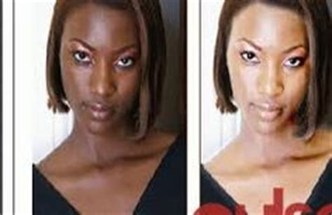 where to get whitening injections in nigeria picture 9