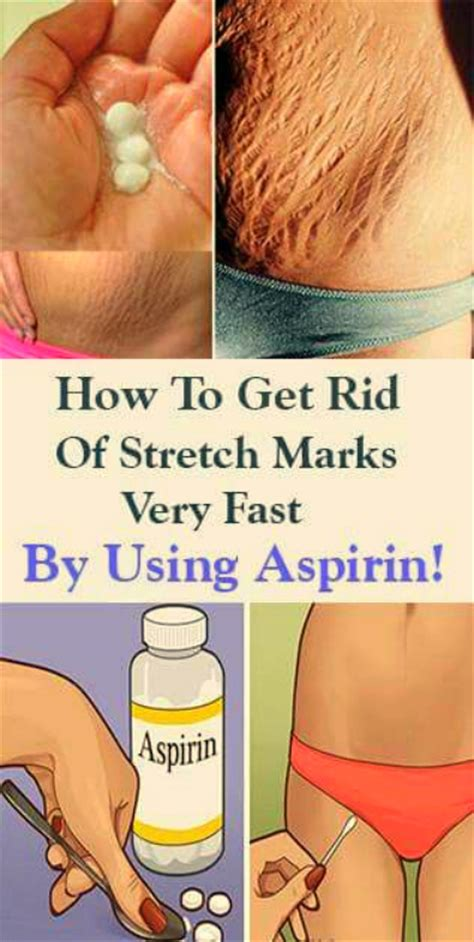 get rid of stretch marks picture 11