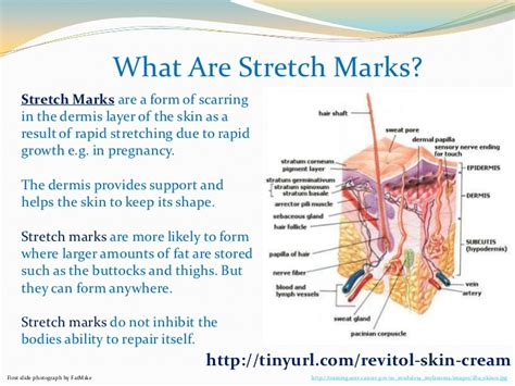 what is stretch marks picture 14