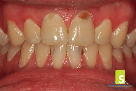 cavaties teeth picture 9