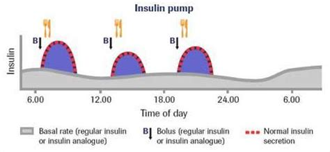 basal rate in diabetics picture 2