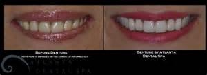dental veneers for teeth picture 5
