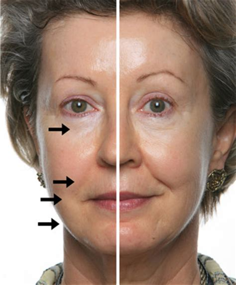 free samples spa skin picture 6